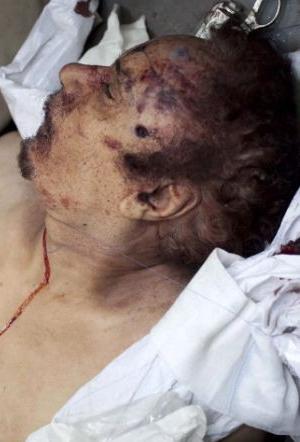 Kaddafinin ceset fotoğrafı için yarıştılar  galerisi resim 10
