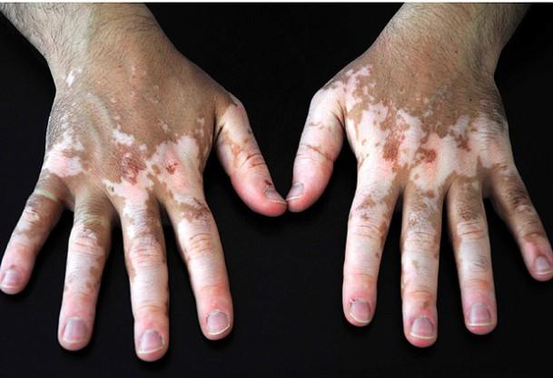 Vitiligo tedavisinde umut ışığı