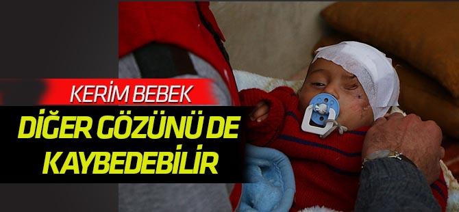 Doğu Gutalı Kerim bebek diğer gözünü de kaybedebilir