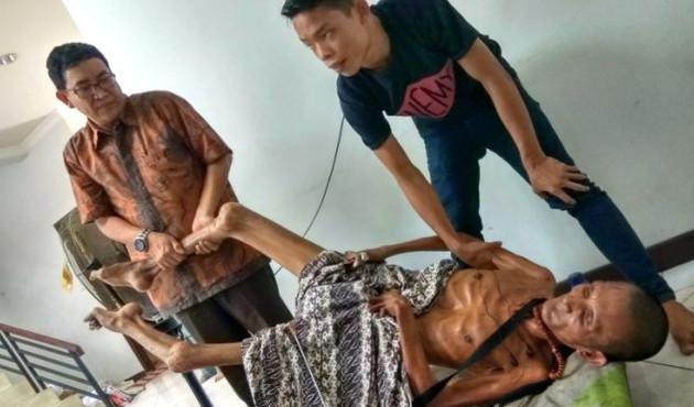 Geçirdiği kaza sonrası vücudu taşlaştı!