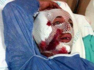 Köpek saldırısına uğrayan işçinin kulağa parçalandı