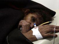 Yemen'deki kolera salgınında 2 bin 101 kişi hayatını kaybetti