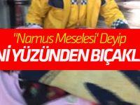 """""""Namus Meselesi' Deyip Eşini Yüzünden Bıçakladı!"""