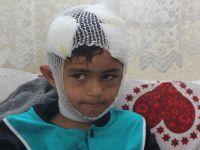 Konya'da 8 yaşındaki çocuk köpeklerin saldırısına uğradı