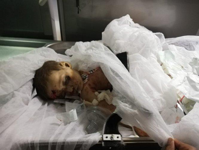 9 aylık Muhammed bebek YPG/PKK'nın kurbanı oldu