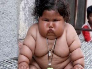 Hindistan'da 8 aylık bebek 17 kilo ağırlında