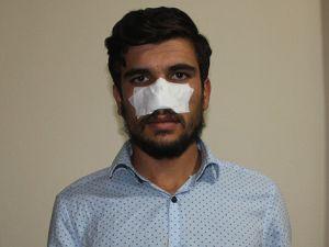 Kavga ettiği kuzeni tarafından burnu ısırılarak koparıldı