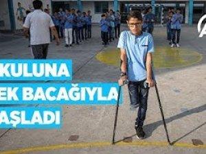 Aylar önce koşup oynadığı okuluna tek bacağıyla başladı